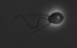 Salpingoeca rosetta choanoflagellate cell