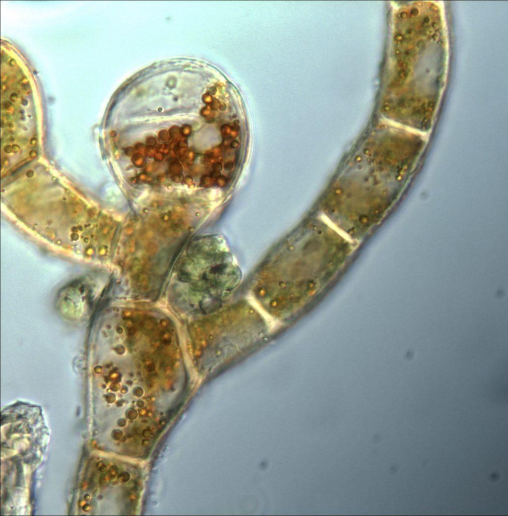 Alga under the microscope